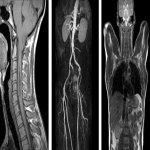 Срезы органов при проведении МРТ, вред мрт, кабинет мрт, чем опасно мрт