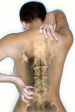 боли в спине, лечение мануальной терапией