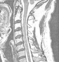 МРТ шейного отдела позвоночника - грыжа диска, мрт шеи, мрт шейного отдела позвоночника