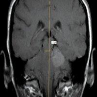 фронтальная МРТ головного мозга при мозжечково-тенториальной дислокации