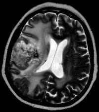 магнитно-резонансная томография МРТ головного мозга - опухоль магнитно-резонансная томография головного мозга мрт томография мозга