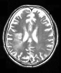 МРТ головного мозга - инсульт томография мозга мрт магнитно-резонансная томография головного мозга