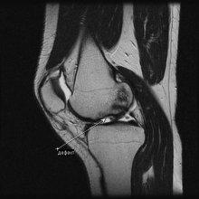 МРТ томография колена в сагиттальной проекции томография коленного сустава мрт суставов