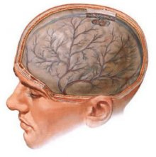 энцефалопатия головного мозга, энцефалопатия, степени энцефалопатии