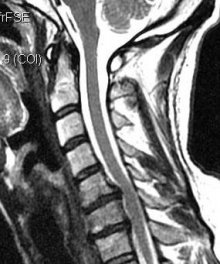 МРТ шейного отдела позвоночника в сагиттальной проекции - грыжа диска, мрт шеи, мрт шейного отдела