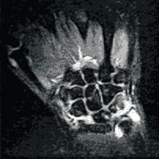синовит лучезапястного сустава, мрт кисти, мрт лучезапястного сустава, сделать МРТ кисти
