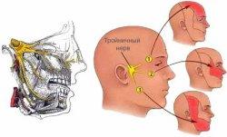 Области боли при невралгии тройночного нерва