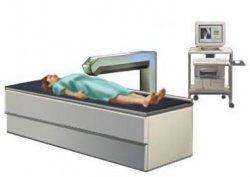 денситометрия — процедура измерения плотности костной ткани, остеопороз, остеопороз костей, денситометрия