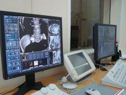 монитор компьтерного томографа, КТ, рентгеновская компьютерная томография