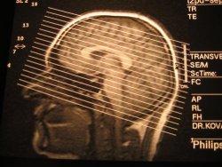 магнитно-резонансная томография мрт снимок томограмма, где сделать мрт, где можно сделать мрт
