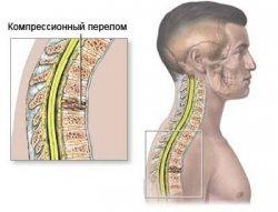 компрессионный перелом позвонка, вид сбоку, остеопороз, остеопороз позвоночника