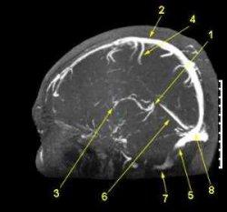 МР ангиография сосудов головного мозга в сагиттальной проекции, МР ангиография сосудов, МРТ сосудов, ангиография, ангиография сосудов