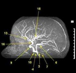 МР ангиография сосудов головного мозга в сагиттальной проекции, МР ангиография сосудов, МРТ сосудов, ангиография мозга