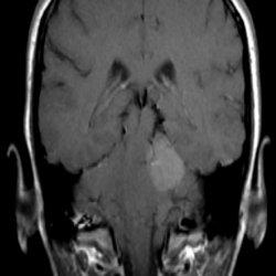 фронтальная МРТ головного мозга при смещении миндалин мозжечка