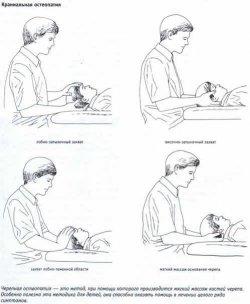 метод краниальной остеопатии, остеопатия, остеопатическое лечение