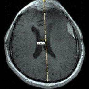аксиальная МРТ головного мозга при конвекситальной менингиоме слева