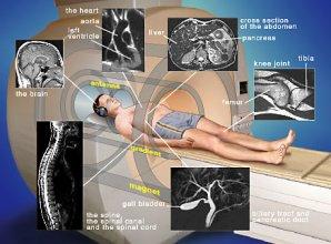 магнитно-резоанасная томография, мрт, где сделать мрт, где можно сделать мрт