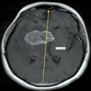 аксиальная проекция МРТ головного мозга с опухолью правого полушария