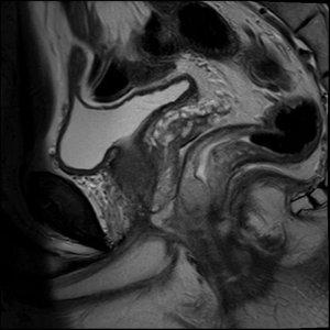 МРТ предстательнои железы PIRADS сагиттальная T2