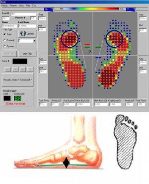 Компьютерная диагностика стопы и подбор стелек от плоскостопия