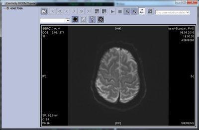 программа просмотра МРТ Centricity DICOM Viewer