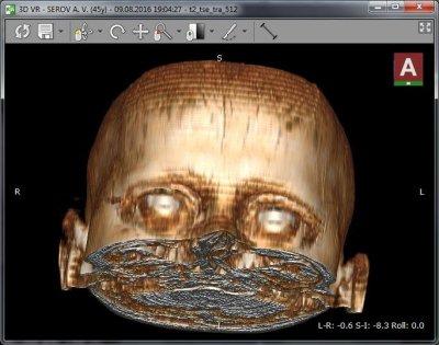 чтение МРТ Radiant DICOM Viewer 3D реконструкция головного мозга