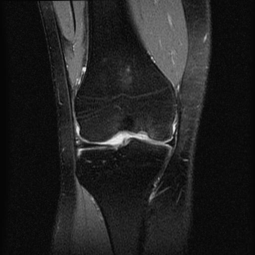 Мрт коленного сустава в спб дешево растяжение внутренних связок коленного сустава