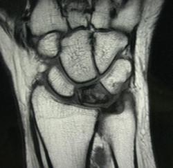 Мрт лучезапястного сустава спб почему может болеть плечевой сустав с левой стороны и шея