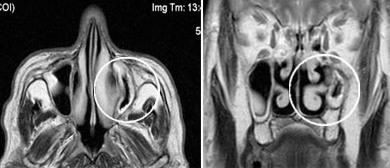хронический риносинусит, мрт гайморовых пазух