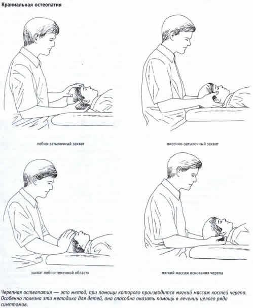 Метод краниальной остеопатии
