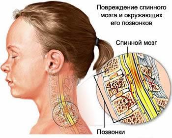 Компрессионный перелом позвоночника со сдавлением спинного мозга, компрессионный перелом позвоночника, лечение компрессионного перелома, перелом позвоночника