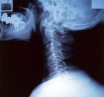 Мозговое кровообращение при остеохондрозе