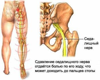 Сдавление седалищного нерва с возникновением боли в ноге, грыжа межпозвоночного диска, протрузия межпозвоночного диска, грыжа шморля
