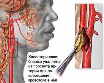 Вертебро-базилярная недостаточность: лечение и симптомы