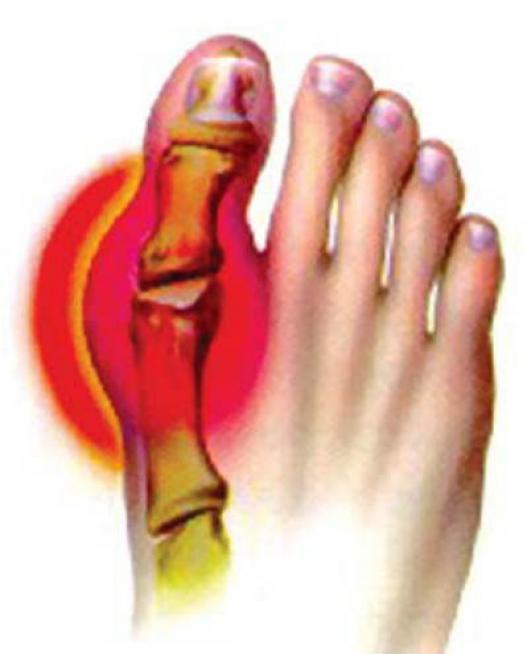 Лечение косточки на ноге - способы лекарства препараты приспособления