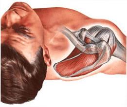 Мышцы плечевого сустава при плечелопаточном периартрозе спастически сокращены, артроз плечевого сустава