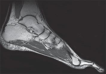 МРТ связок голеностопного сустава может иногда потребоваться в случае их растяжения или разрыва, растяжение связок голеностопа
