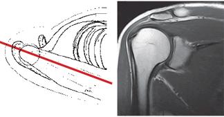 МРТ плечевого сустава во фронтальной проекции может показать отсутствие изменений в полости сустава и его связках, артроз плечевого сустава